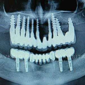 implantologia-elettrosaldata-saverio-ferrari-parabita