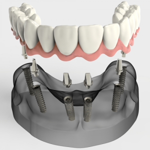 Implantologia dentale Bergamo